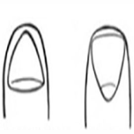 Triangular and inverted triangle fingernails