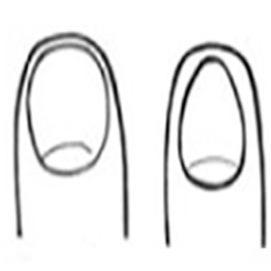 Rounded and egg-shaped fingernails
