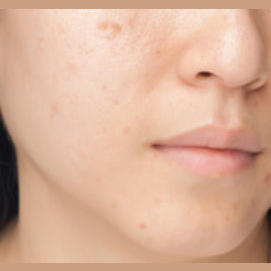 Pimples and blemishes