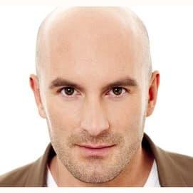 I'm bald.