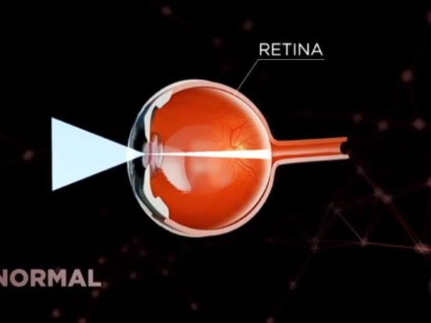 6530522a4 Especialistas alertam para o aumento da miopia de grau alto ...