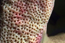 Do You Have Trypophobia