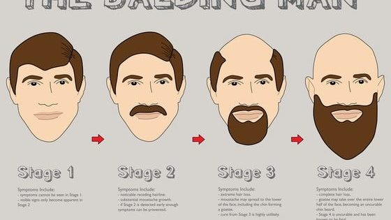 Predict what age you will begin balding with meaningful questions.