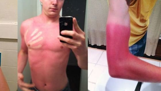 Skin Cancer is real people! Put on that sunscreen!