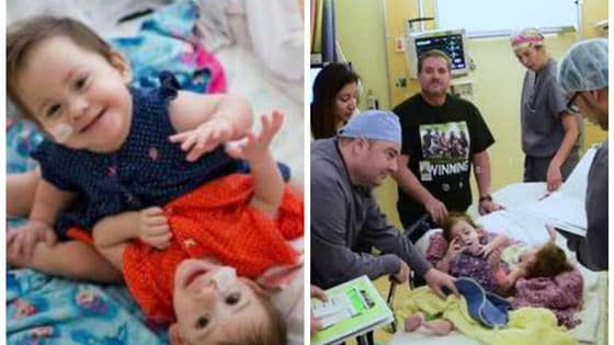 Californian 2-year-olds Eva and Erika Sandoval were born conjoined from sternum to pelvis. Now the twin girls are recovering after being separated in a 17-hour marathon procedure.