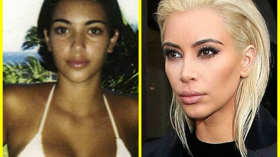 Kim has always claimed that she is against plastic surgery. Take this quiz to see if her face really has changed over the years!