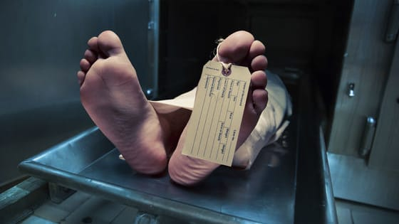Medical examiners are responsible for determining cause of death after examining a dead body. Do you have what it takes to solve the case?