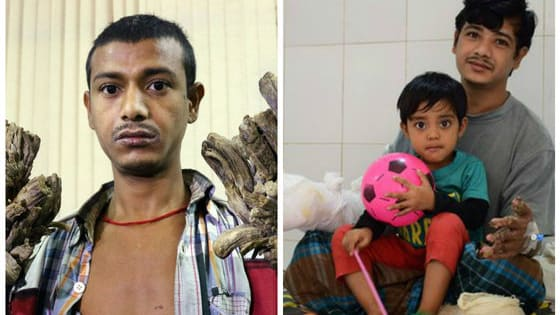Abul Bajandar had a rare disease that gave him tree-like hands, but now, sixteen surgeries later, he finally has their use back and, most importantly, can finally hug his daughter.
