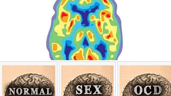 Only a brain surgeon can decipher neuroimaging and its color patterns - Or can you, too? Are you as smart as a brain surgeon?
