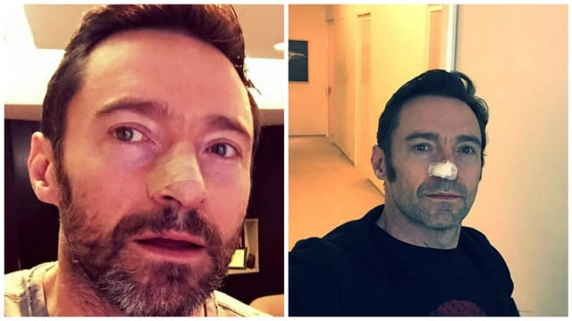 The Wolverine star has been very open about his skin cancer diagnoses and the importance of wearing sunscreen. Find out more here.