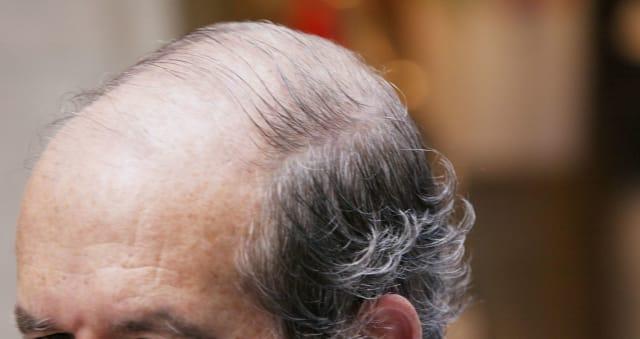 Faut-il interdire le Propecia, l'anti-chute de cheveux ...