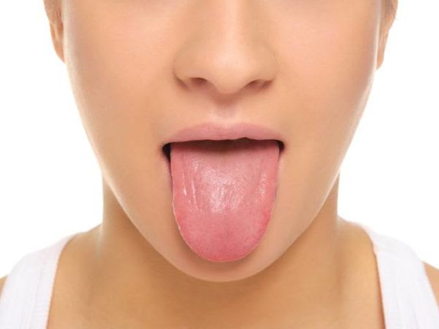 How do you spell the medical term for those annoying swollen tastebuds that sometimes crop up on your tongue?