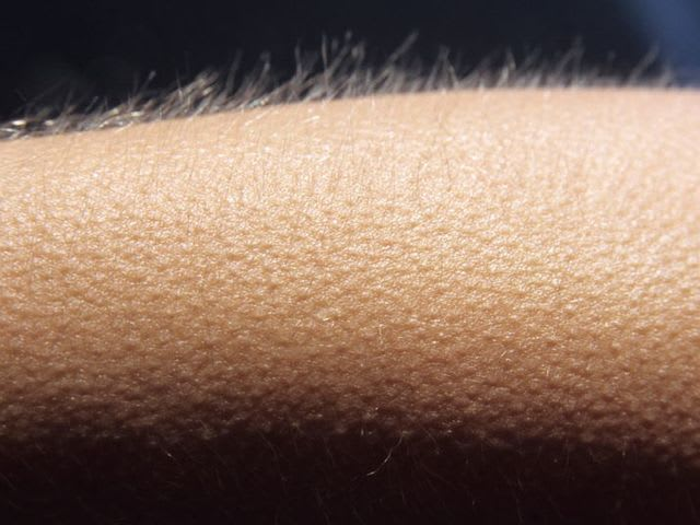 How do you spell the medical term for goosebumps?