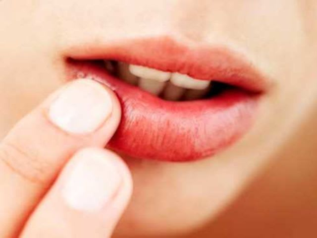 The scientific term for a canker sore is aphthous stomatitis!
