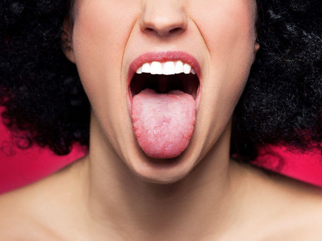 Those super annoying tongue bumps are called Transient Lingual Papillitis!