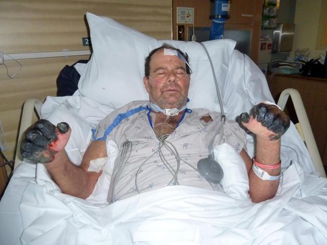 Un hombre en Oregon, EU, se recupera de la plaga en 2012.