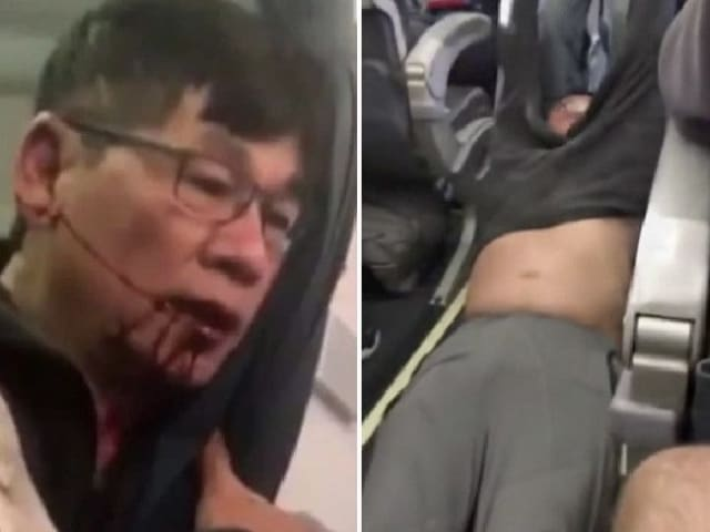 The man was injured being removed from a flight in Chicago
