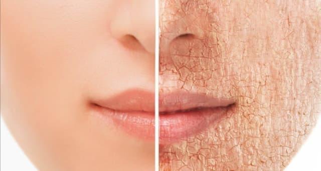 """El cuerpo habla por sí solo, siendo la piel es el órgano más grande lo manifiesta con resequedad y un tono """"amarillento"""", lo que se conoce como piel cetrina. También aparecen ojeras, bolsas. Lo que es más, las líneas de expresión se acentúan y se inflaman los ojos.   Lo anterior sucede porque el cuerpo libera demasiado cortisol, hormona del estrés, que en cantidades excesivas puede romper el colágeno de la piel que es el encargado de darle tonicidad y elasticidad, dice Phil Gehrman, especialista en trastornos de sueño."""