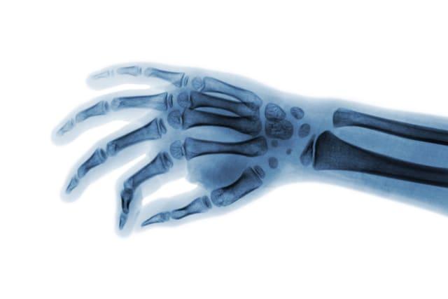 Atraso no desenvolvimento ósseo
