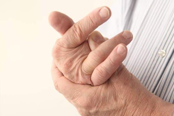 El crujir los dedos podría ser una consecuencia de la artritis y no una causa.