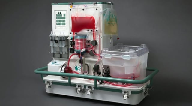 A ground-breaking study by the University of Birmingham will test if livers that have been rejected for transplantation can be made viable by using the OrganOx metra (above), a liver perfusion machine that maintains the liver at normal body temperature prior to transplantation.