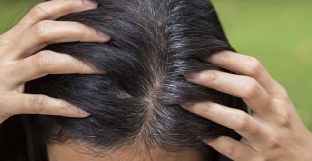 Cuando eres joven y ya tu cabello presenta canas, la razón puede ser la falta del gen IRF4 que hace que los cabellos blancos aparezcan a temprana edad, aunque no es el único motivo que los científicos exponen.